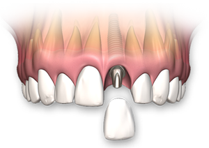 Single-Tooth-Implant