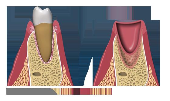 bone-grafting-bone-loss-vertical1