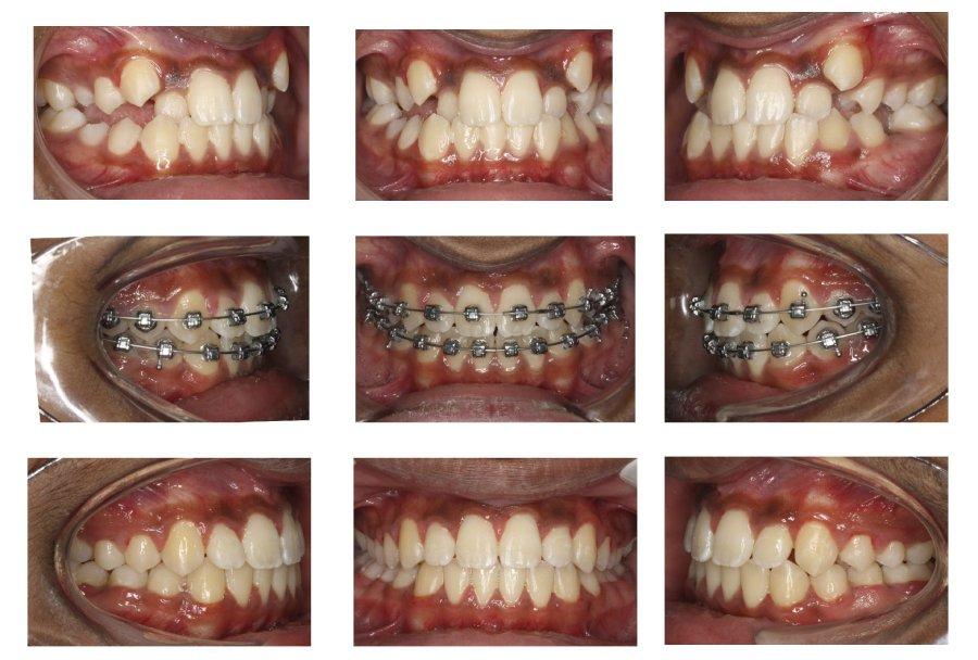 2-damon-braces-crowded-teeth-straight-orthodontist