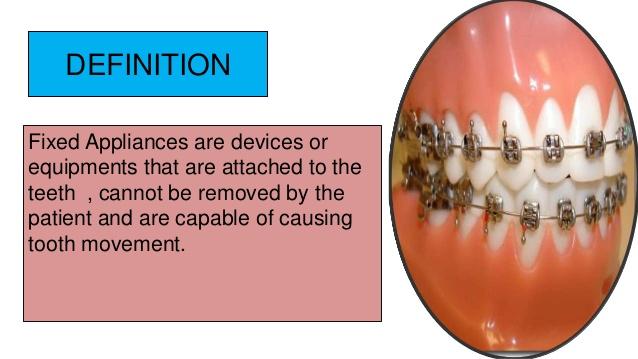 fixed-appliances-in-orthodontics-3-638
