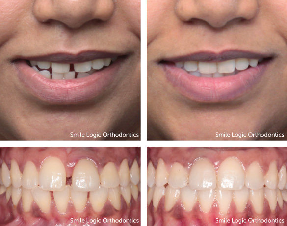 spacing-invisalign-before-after